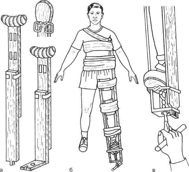 способы иммобилизации при травмах в походе